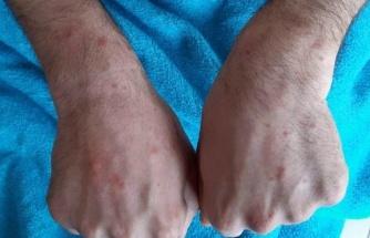 Cerrahpaşa'da corona virüsü hastalarının deri bulguları incelendi