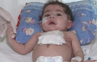 Dünyada 33, Türkiye'de 2'nci vaka: Bebeğin kalbine Türk doktordan 'zırh'