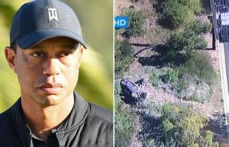 Feci bir kaza geçiren Tiger Woods acilen ameliyata alındı