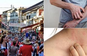 İstanbul Başta Olmak Üzere Yurt Genelinde Salgın İddiası Büyüyor! Artan Uyuz Şikayeti Herkesi Panikletti