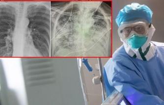 Koronavirüsün korkunç etkisi röntgen filmlerine de yansıdı: Sigara tiryakisinden kat kat daha kötü