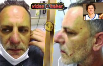 Ozan Güven'in ağız dalaşı sonrası görüntüleri ortaya çıktı!