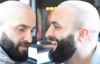 Saç ektiren Berkay muhabirlere fikrini sordu