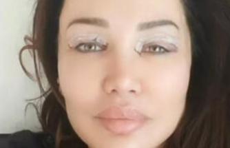 Umut Akyürek göz kapağı ameliyatı oldu