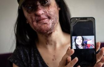 Yüzüne Kezzap Atılan Berfin Özek 'Onunla Evlenmek İstiyorum' Diyerek Şikayetini Çekti